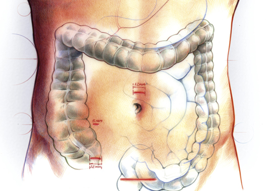 Colonoscopy Naples