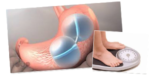 Gastric Balloon Surgery Cost and Side Effects